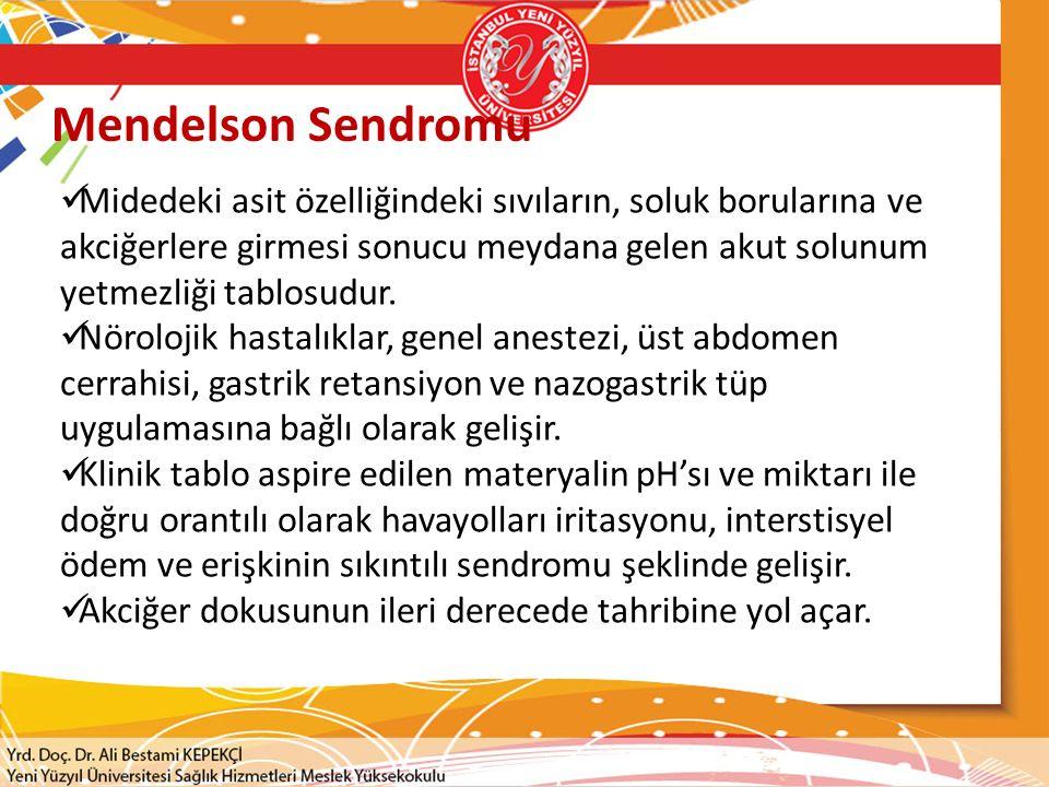 Mendelson Sendromu