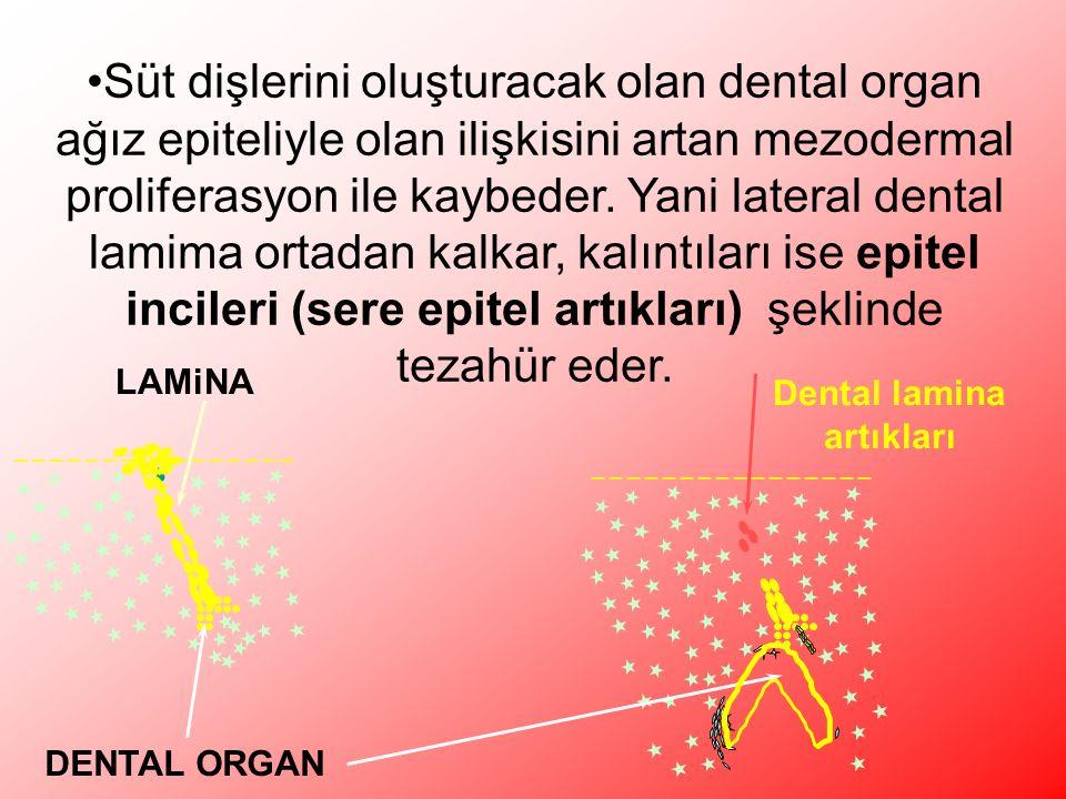 Dental lamina artıkları