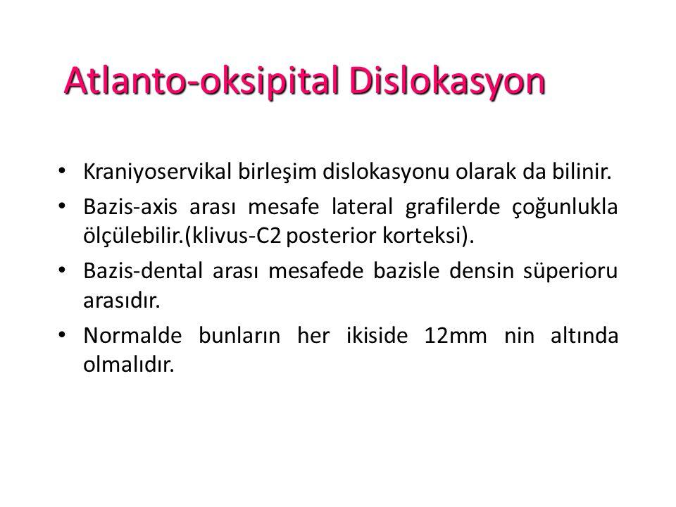 Atlanto-oksipital Dislokasyon