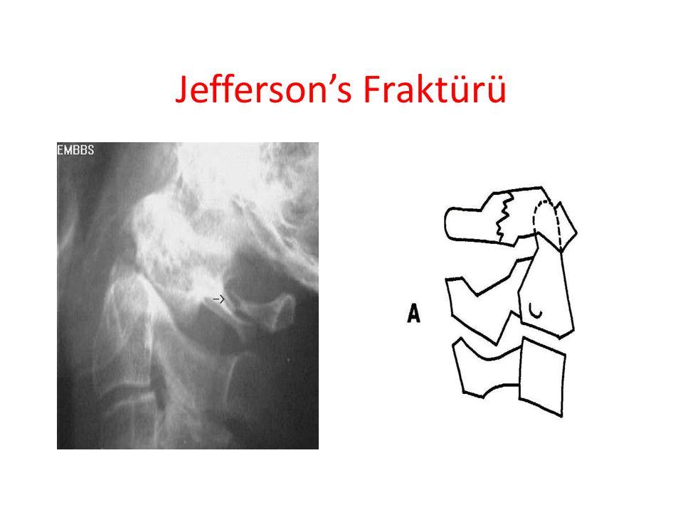 Jefferson's Fraktürü