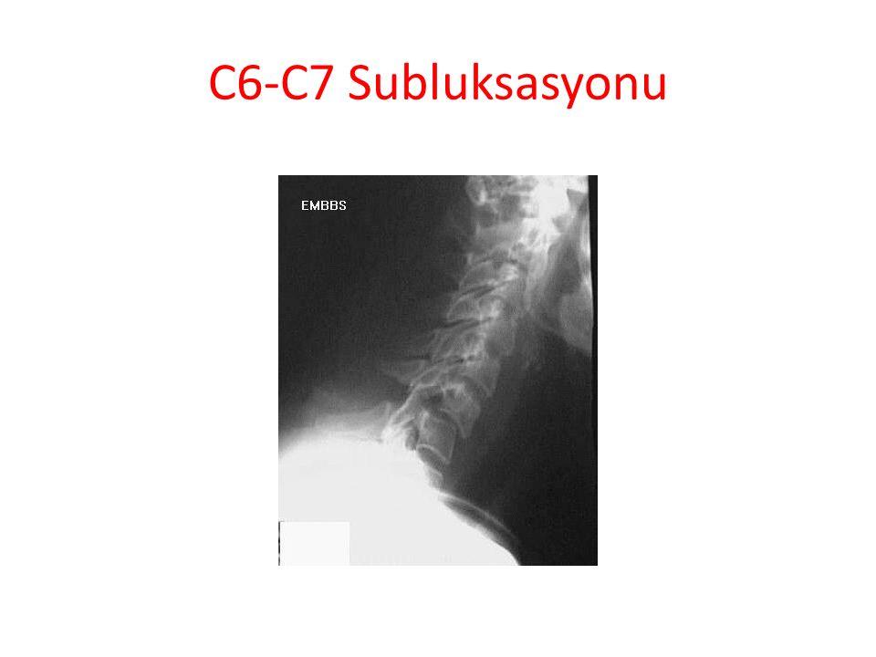 C6-C7 Subluksasyonu