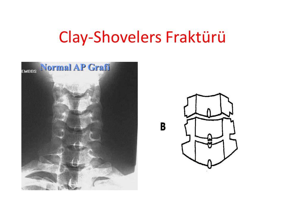 Clay-Shovelers Fraktürü
