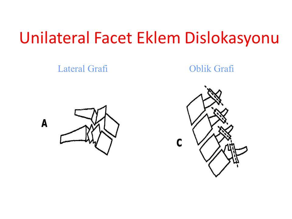 Unilateral Facet Eklem Dislokasyonu