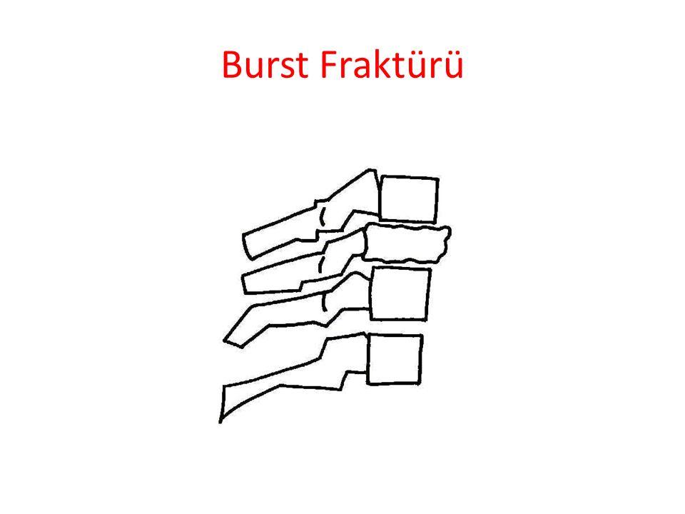 Burst Fraktürü