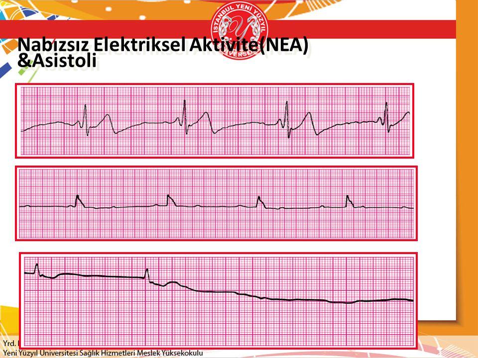 Nabızsız Elektriksel Aktivite(NEA) &Asistoli