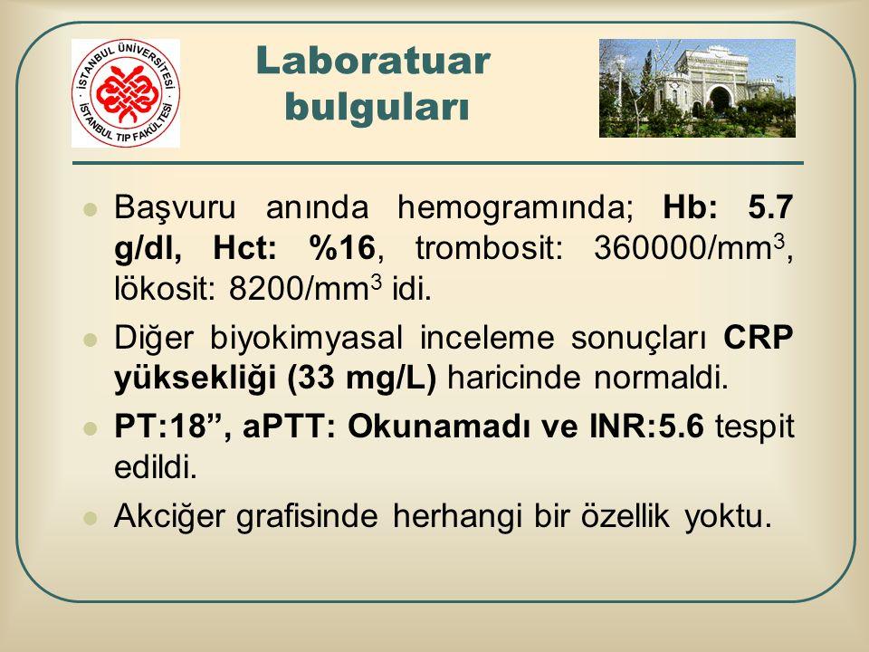 Laboratuar bulguları Başvuru anında hemogramında; Hb: 5.7 g/dl, Hct: %16, trombosit: 360000/mm3, lökosit: 8200/mm3 idi.