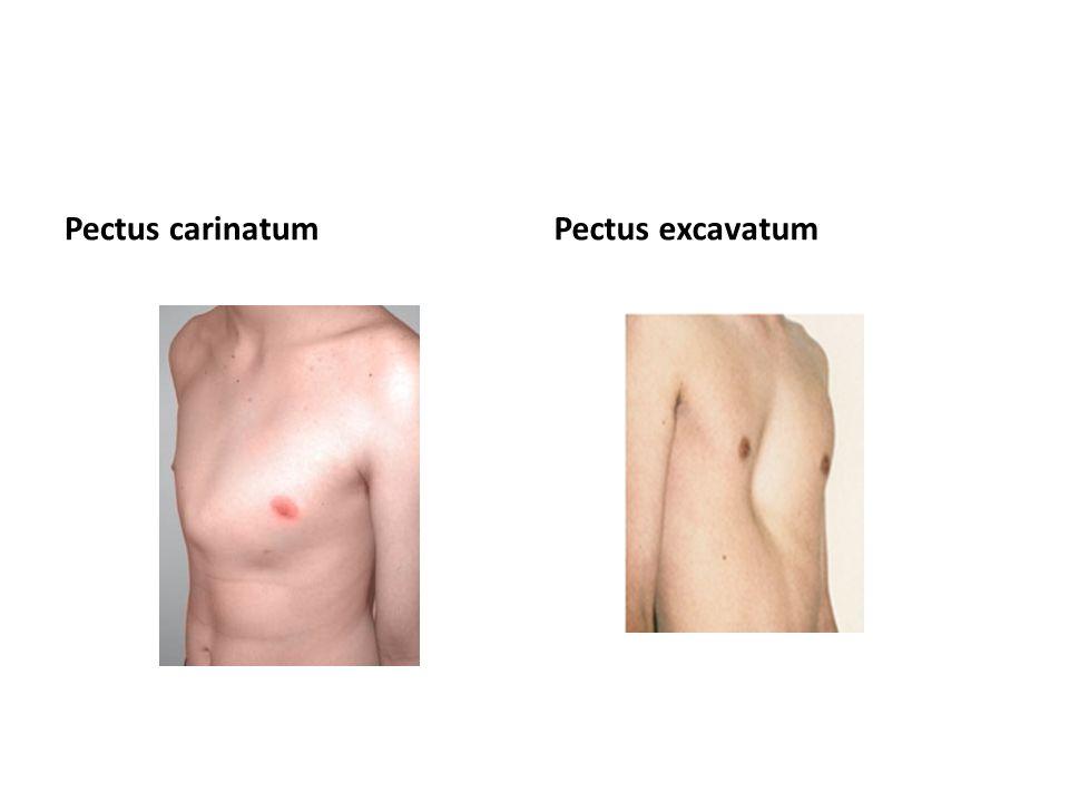Pectus carinatum Pectus excavatum