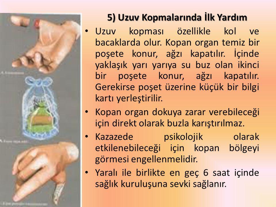 5) Uzuv Kopmalarında İlk Yardım