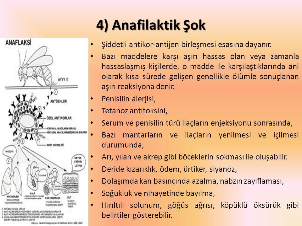 4) Anafilaktik Şok Şiddetli antikor-antijen birleşmesi esasına dayanır.