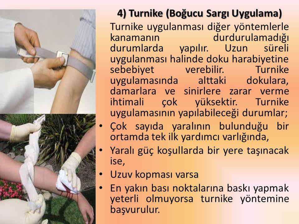 4) Turnike (Boğucu Sargı Uygulama)