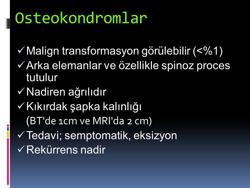 Osteokondromlar Malign transformasyon görülebilir (<%1)