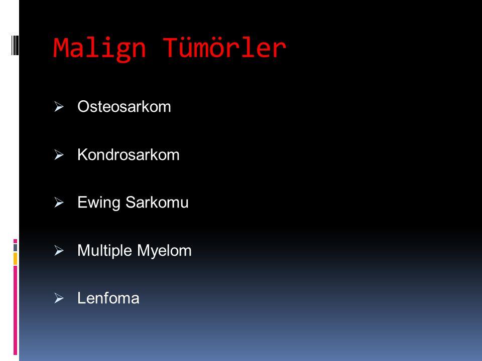 Malign Tümörler Osteosarkom Kondrosarkom Ewing Sarkomu Multiple Myelom