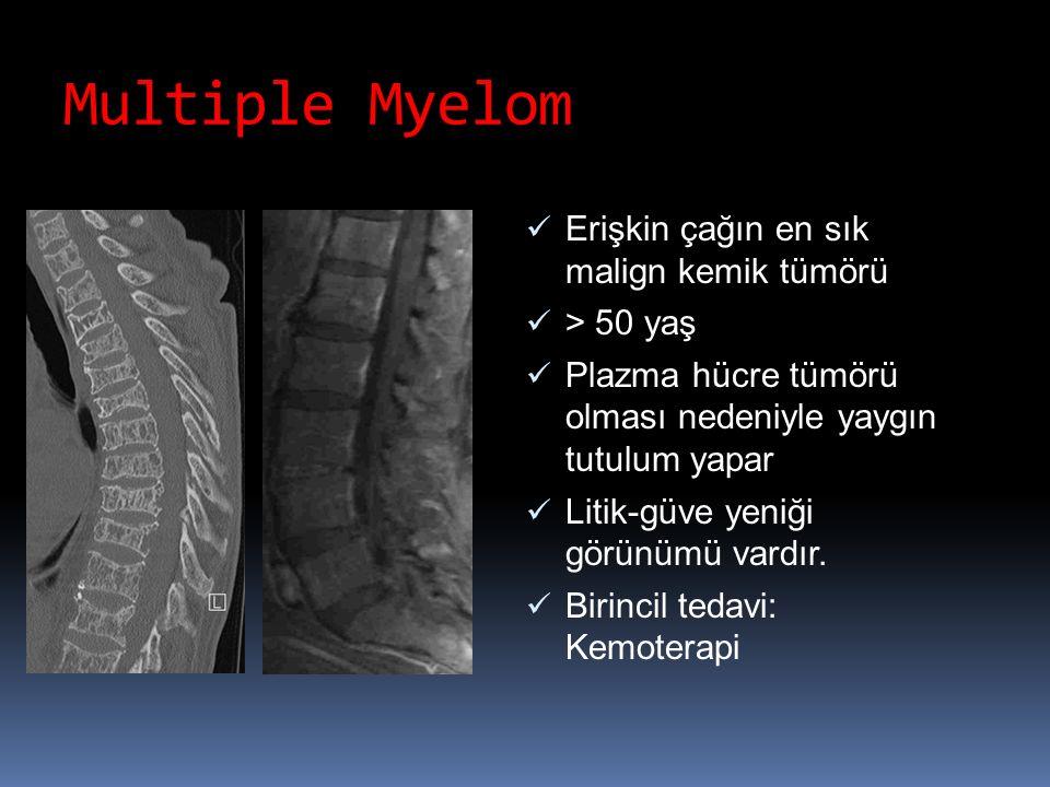 Multiple Myelom Erişkin çağın en sık malign kemik tümörü > 50 yaş