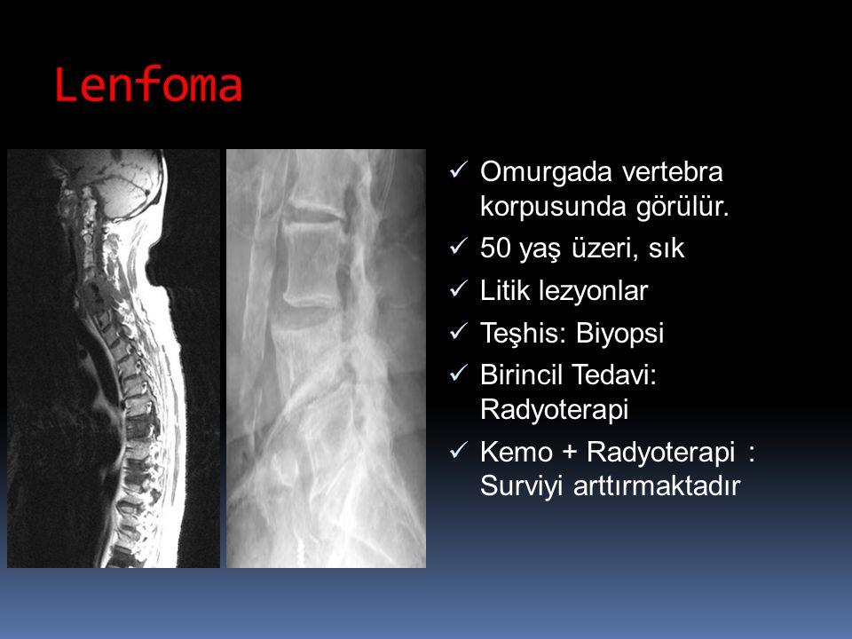 Lenfoma Omurgada vertebra korpusunda görülür. 50 yaş üzeri, sık