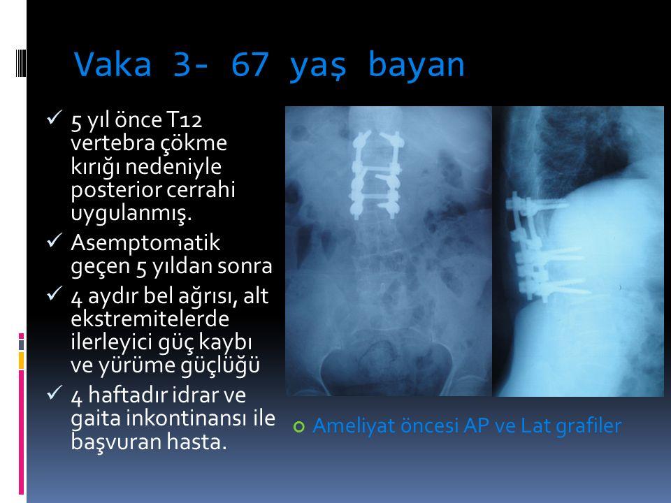 Vaka 3- 67 yaş bayan 5 yıl önce T12 vertebra çökme kırığı nedeniyle posterior cerrahi uygulanmış.