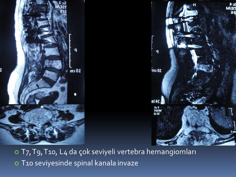 T7, T9, T10, L4 da çok seviyeli vertebra hemangiomları