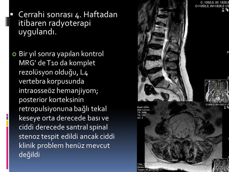 Cerrahi sonrası 4. Haftadan itibaren radyoterapi uygulandı.