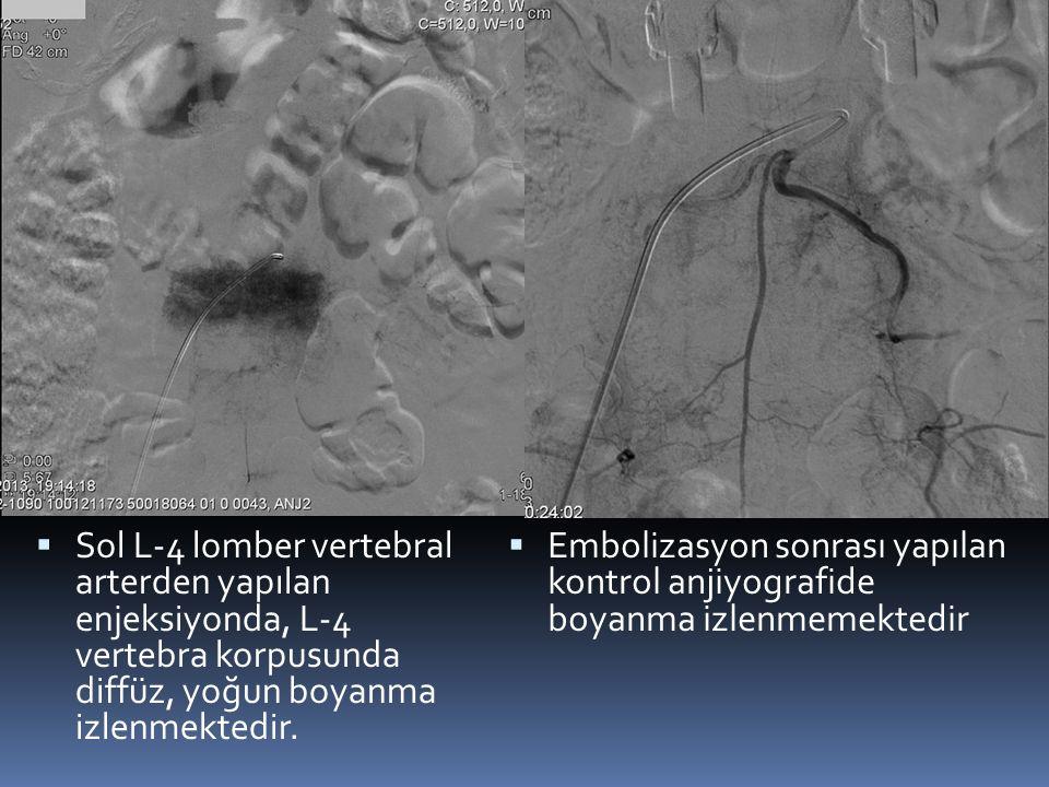 Sol L-4 lomber vertebral arterden yapılan enjeksiyonda, L-4 vertebra korpusunda diffüz, yoğun boyanma izlenmektedir.