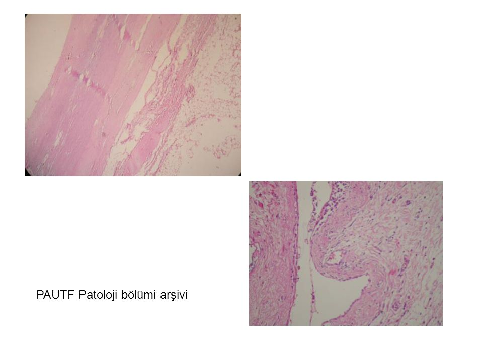 PAUTF Patoloji bölümi arşivi