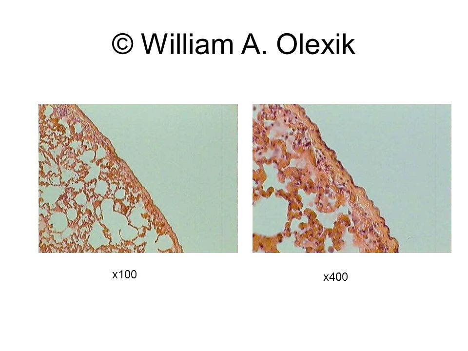 © William A. Olexik x100 x400 Normal histology
