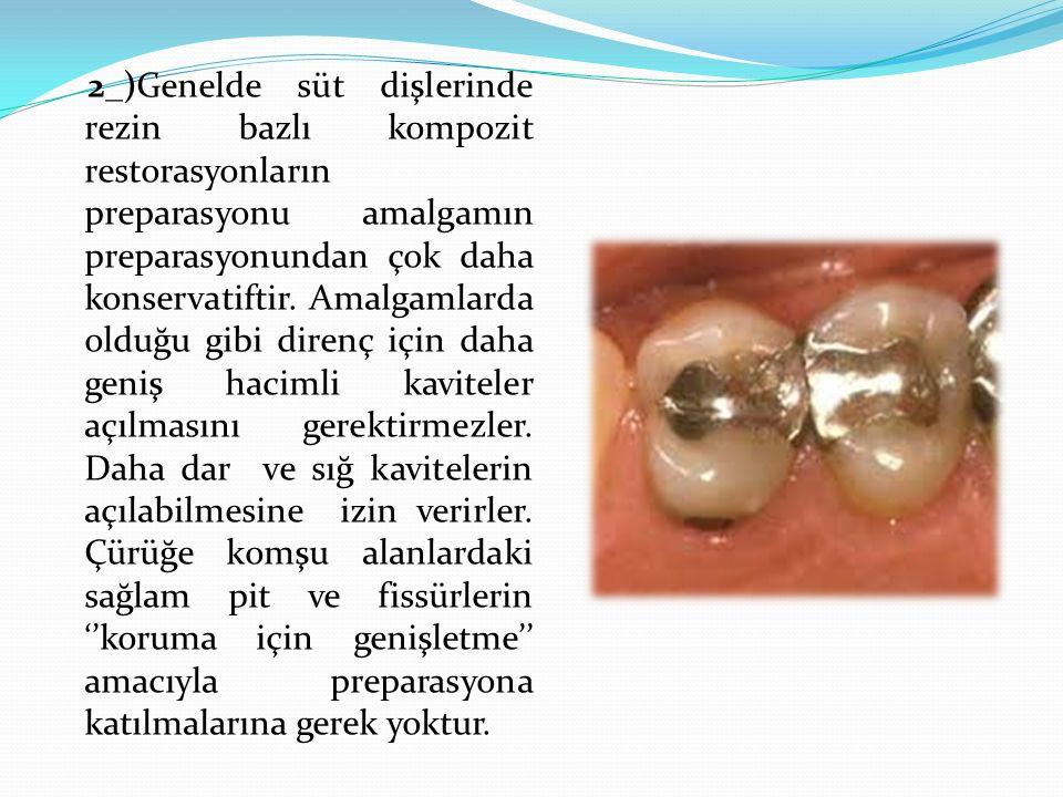 2_)Genelde süt dişlerinde rezin bazlı kompozit restorasyonların preparasyonu amalgamın preparasyonundan çok daha konservatiftir.