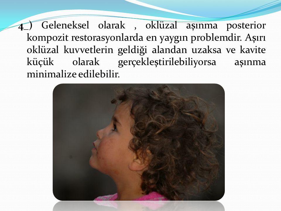 4_) Geleneksel olarak , oklüzal aşınma posterior kompozit restorasyonlarda en yaygın problemdir.