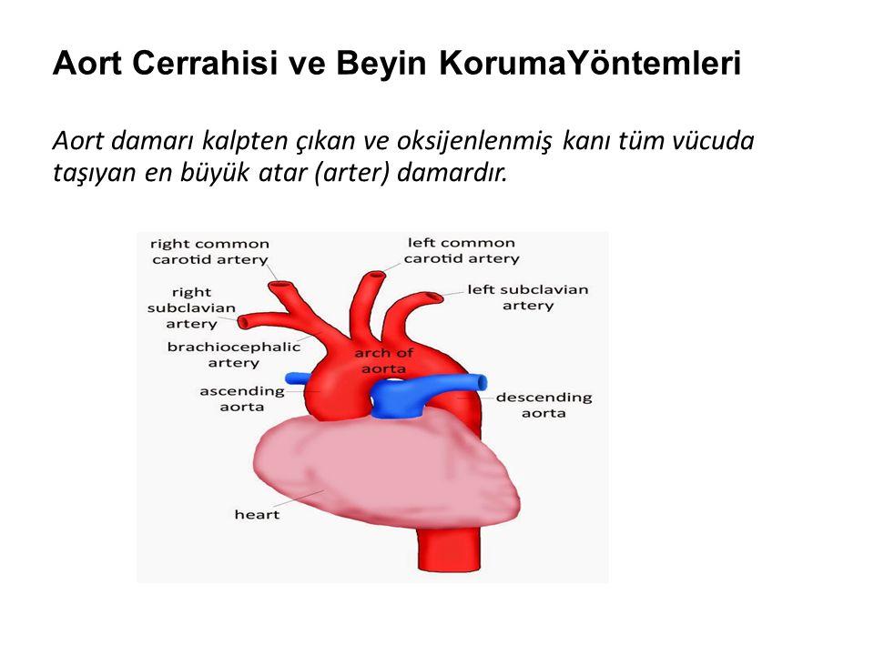 Aort Cerrahisi ve Beyin KorumaYöntemleri