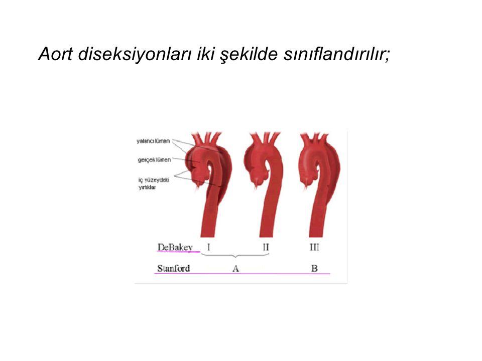 Aort diseksiyonları iki şekilde sınıflandırılır;