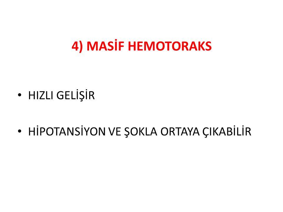4) MASİF HEMOTORAKS HIZLI GELİŞİR