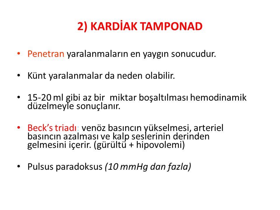 2) KARDİAK TAMPONAD Penetran yaralanmaların en yaygın sonucudur.