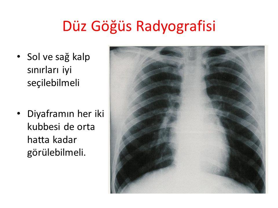 Düz Göğüs Radyografisi