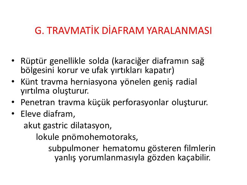 G. TRAVMATİK DİAFRAM YARALANMASI