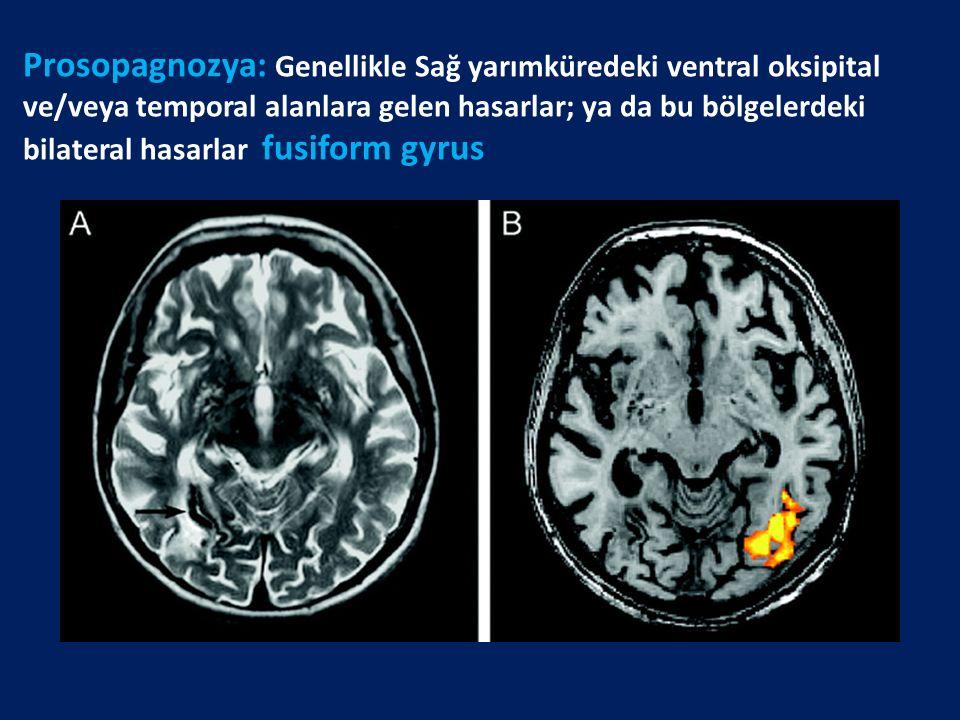 Prosopagnozya: Genellikle Sağ yarımküredeki ventral oksipital ve/veya temporal alanlara gelen hasarlar; ya da bu bölgelerdeki bilateral hasarlar fusiform gyrus