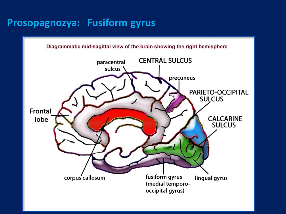 Prosopagnozya: Fusiform gyrus