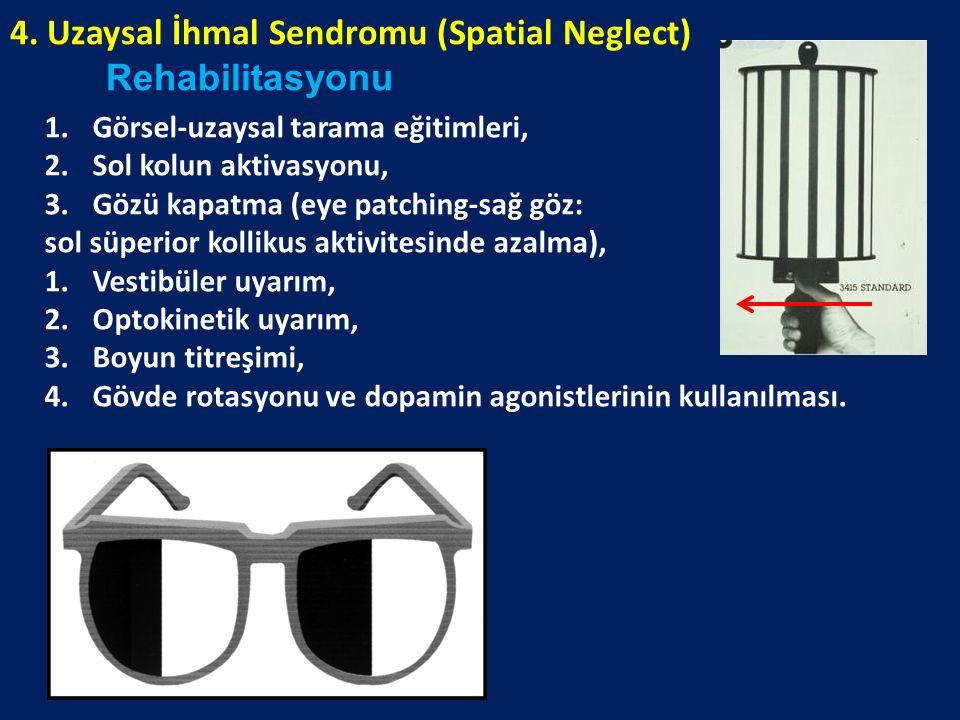 4. Uzaysal İhmal Sendromu (Spatial Neglect) Rehabilitasyonu