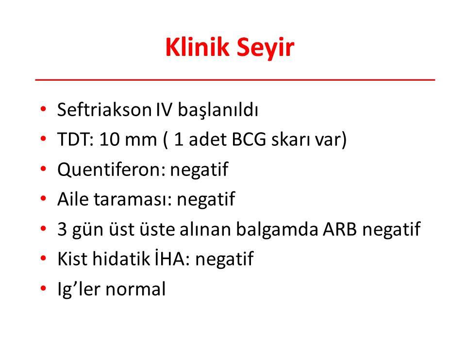 Klinik Seyir Seftriakson IV başlanıldı
