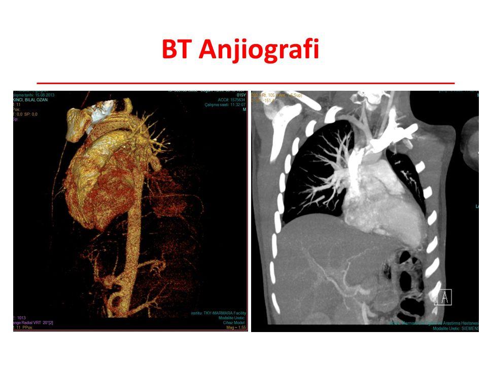 BT Anjiografi Radyoloji tarafından bt anjio önerildi; bu lezyonların arteriyel anevrizma ile uygun olduğu düşünüldü.