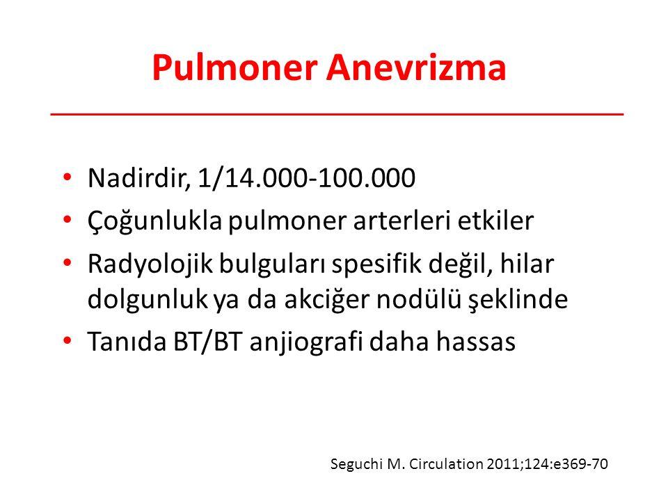 Pulmoner Anevrizma Nadirdir, 1/14.000-100.000