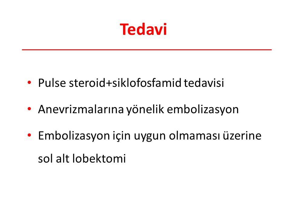 Tedavi Pulse steroid+siklofosfamid tedavisi