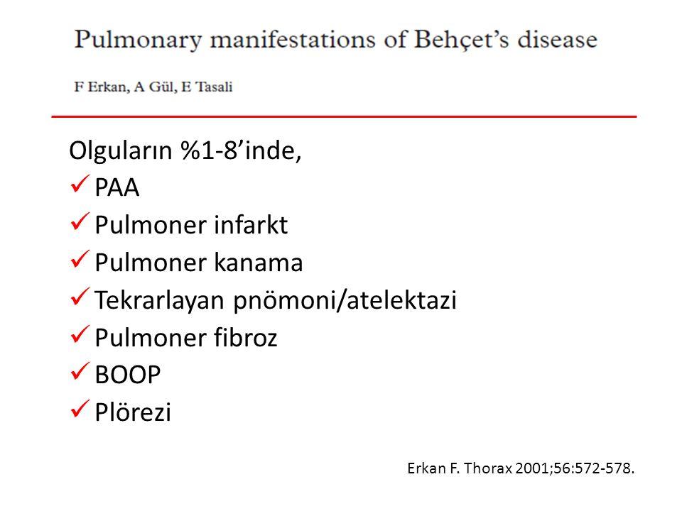 Behçet Hastalığı-Pulmoner Tutulum