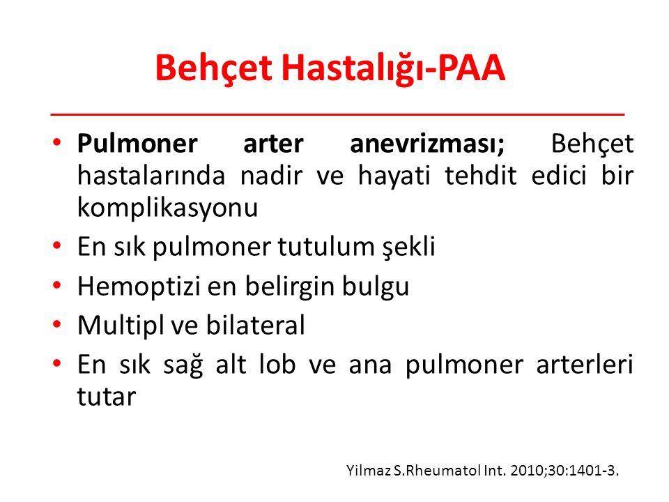 Behçet Hastalığı-PAA Pulmoner arter anevrizması; Behçet hastalarında nadir ve hayati tehdit edici bir komplikasyonu.