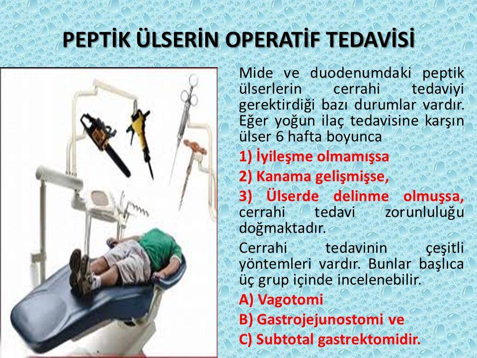 PEPTİK ÜLSERİN OPERATİF TEDAVİSİ