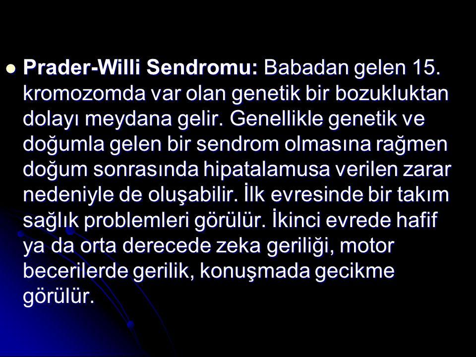 Prader-Willi Sendromu: Babadan gelen 15