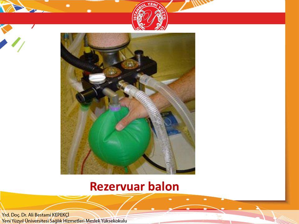 Rezervuar balon