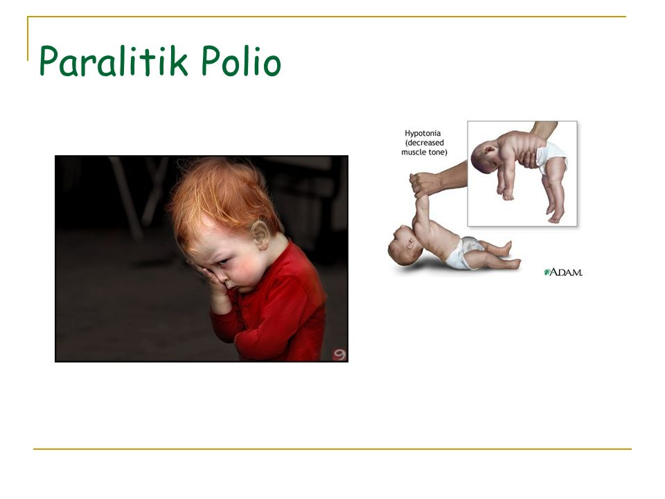 Paralitik Polio