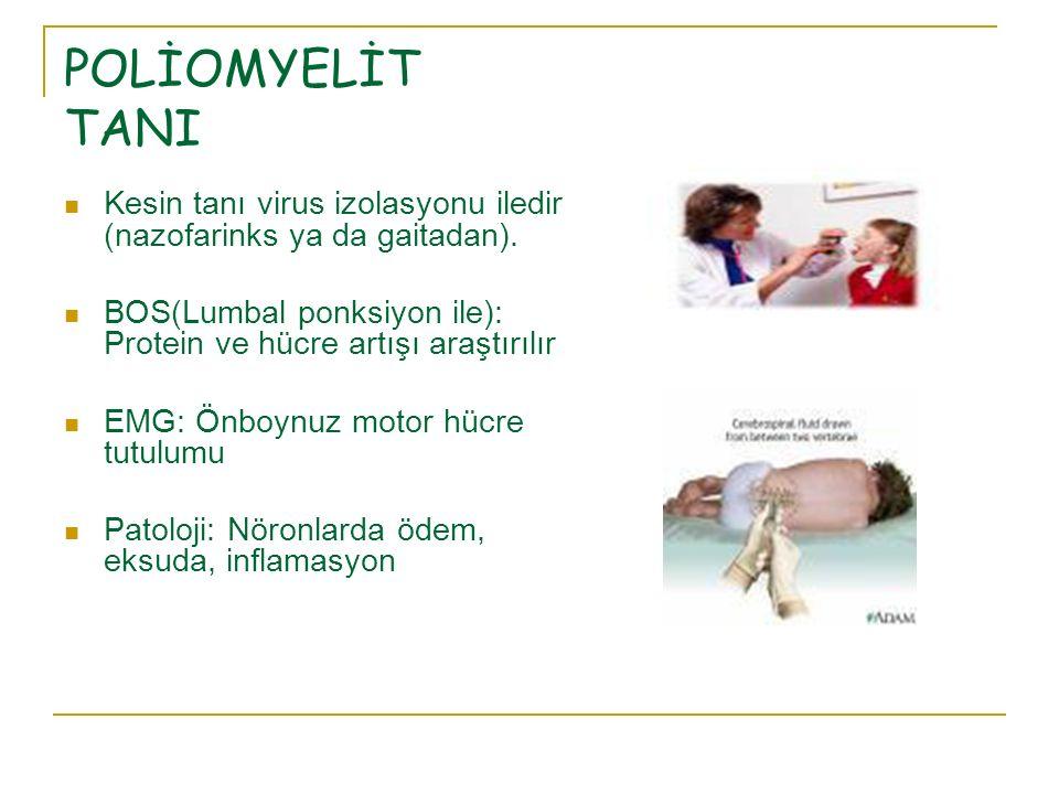 POLİOMYELİT TANI Kesin tanı virus izolasyonu iledir (nazofarinks ya da gaitadan). BOS(Lumbal ponksiyon ile): Protein ve hücre artışı araştırılır.