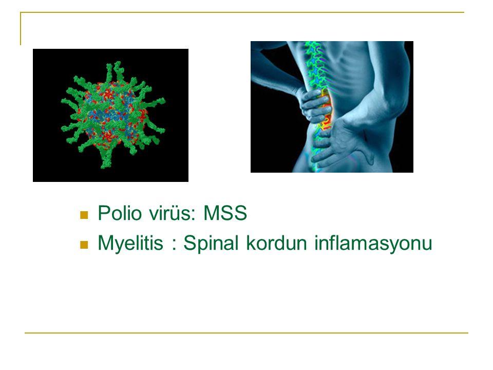 Polio virüs: MSS Myelitis : Spinal kordun inflamasyonu