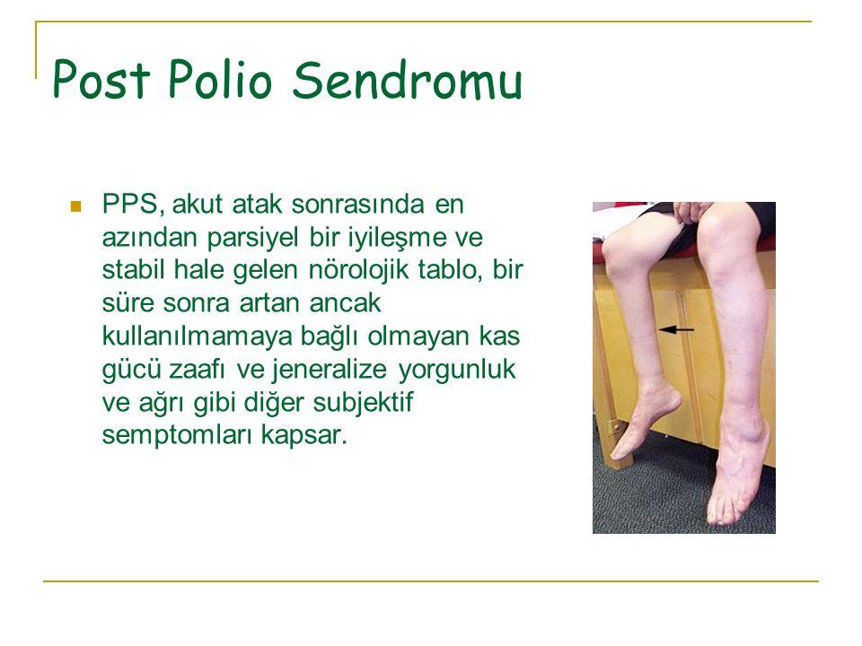 Post Polio Sendromu