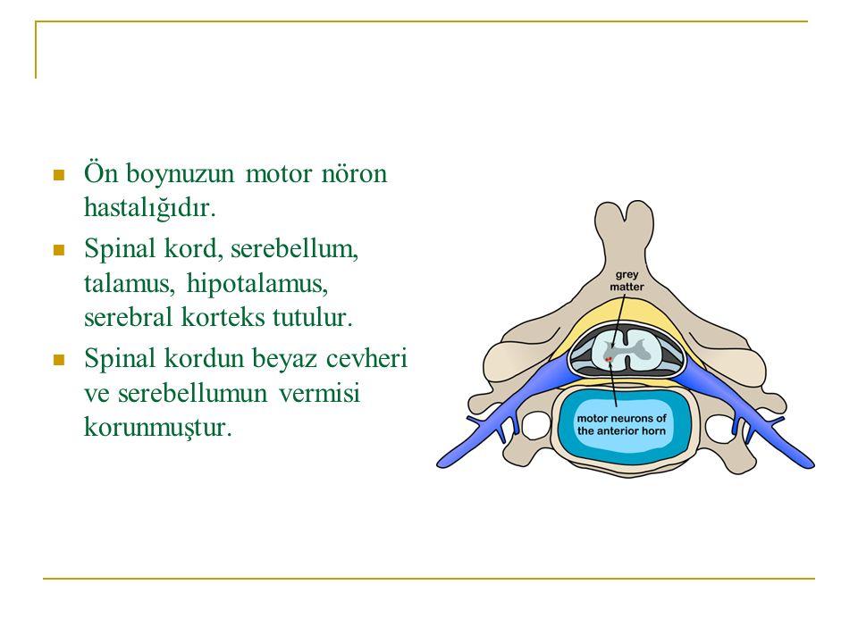Ön boynuzun motor nöron hastalığıdır.
