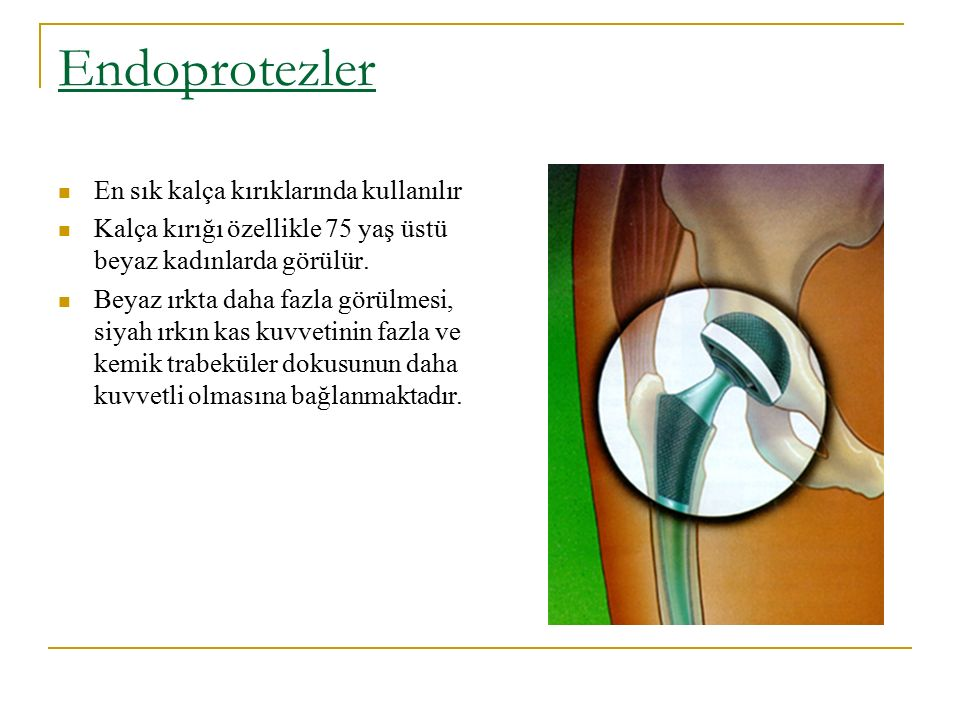 Endoprotezler En sık kalça kırıklarında kullanılır